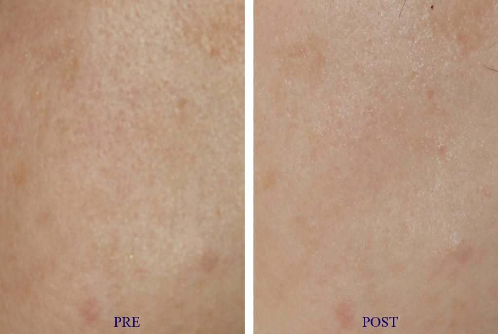 Before & after Carbon laser for pores