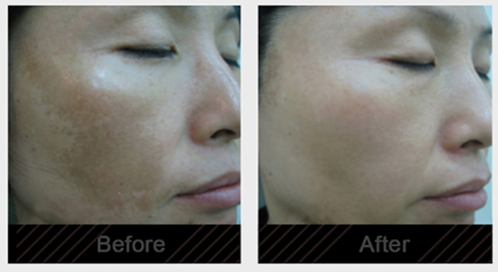 Melasma before and after