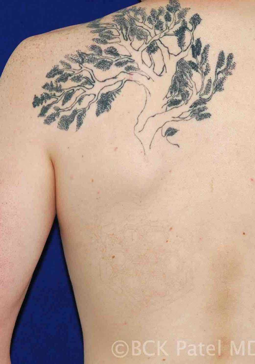 Tattoo removal by Dr. BCK Patel MD, FRCS