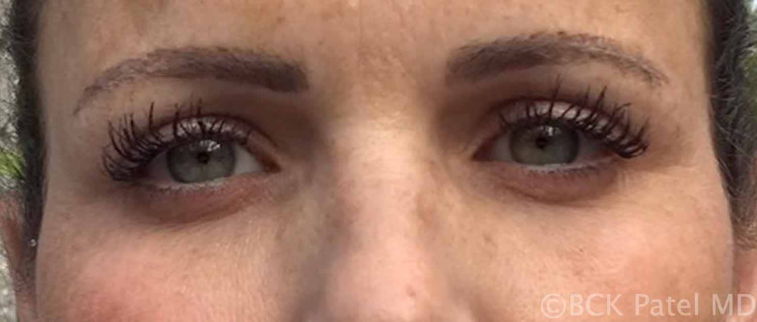 Photo of dark circles around eyes after laser treatment