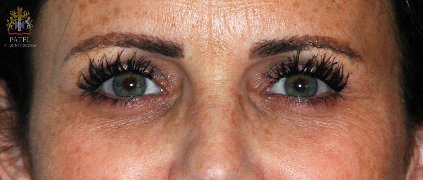 Laser lightening of eye dark circles
