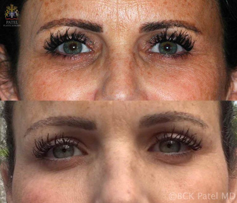 Improvement of dark eyelid circles with laser