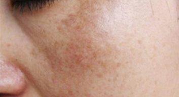 Melasma example-1