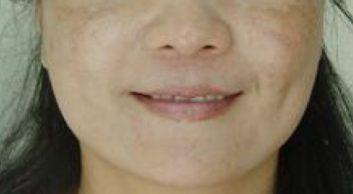 Melasma example-2