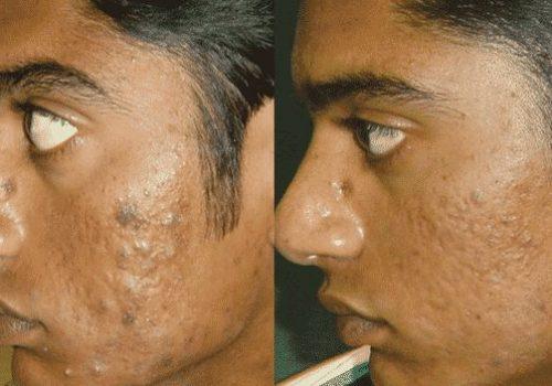 acne-erbium