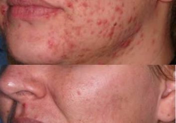 acne vulgaris before & after